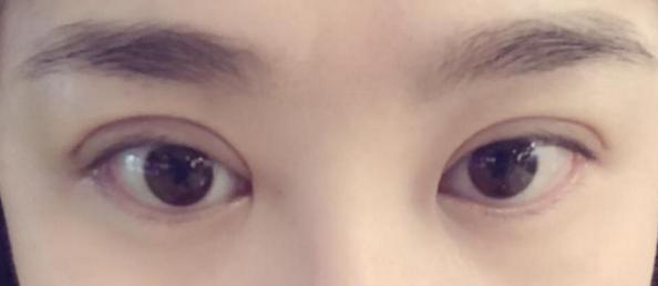 埋线双眼皮的效果维持时间长不长