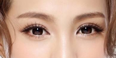 割双眼皮后要注意哪些后遗症问题