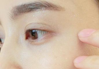 做韩式双眼皮会留下疤痕吗