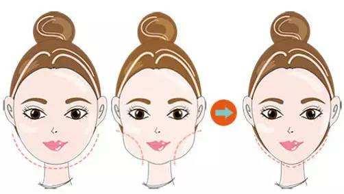 注射瘦脸针要怎么做才能让效果保持更久