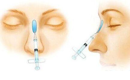 注射玻尿酸隆鼻失败应该怎么办