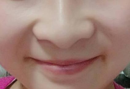 鼻孔大怎么缩小