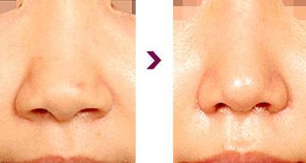 龙8国际真人龙8国际娱乐官方网站手机版做鼻翼缩小术会不会留下明显疤痕