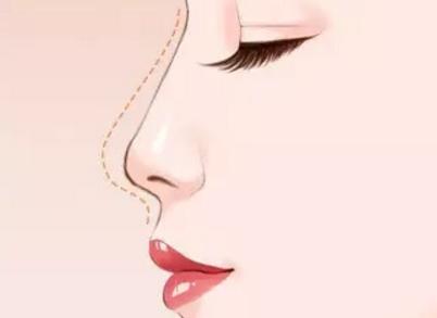 龙8国际真人龙8国际娱乐官方网站手机版做假体隆鼻老了之后会变得怎么样