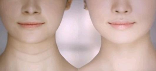 做完激光祛颈纹之后要注意什么