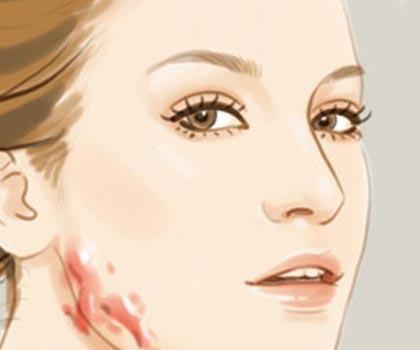 做激光祛疤之后要注意什么