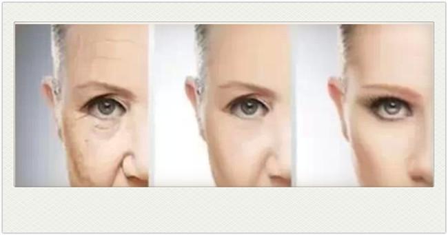 眼部除皱手术在什么年纪做比较好