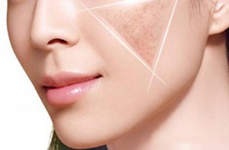 做完激光祛晒斑之后应该如何护理