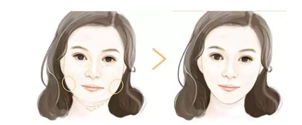 注射瘦脸针之后需要注意什么呢