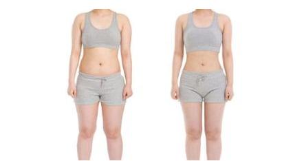 抽脂减肥前后