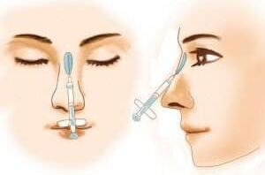 玻尿酸注射隆鼻哪些人是不能做的