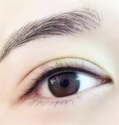 眼部除皱手术的效果维持期限是多久