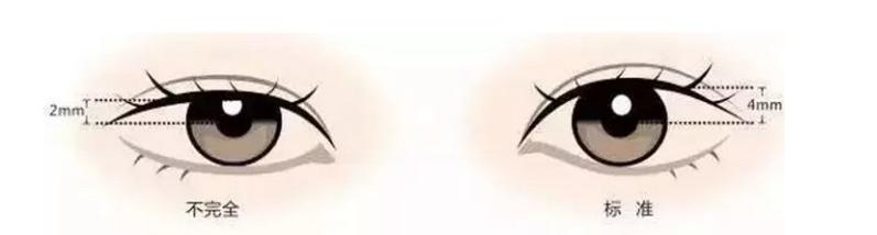 做全切法双眼皮恢复时间是多久