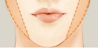 打瘦脸针可能会出现哪些副作用呢