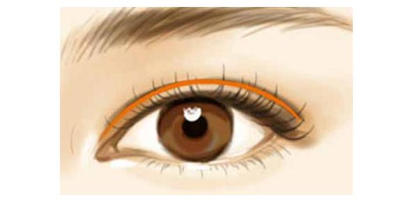 在龙8国际网址龙8国际娱乐游戏做双眼皮效果怎么样