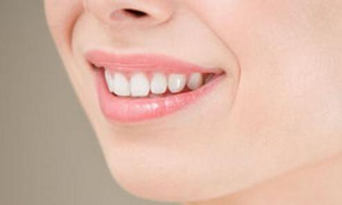 激光美白牙齿