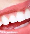龙8国际网址龙8国际娱乐游戏医院做的激光美白牙齿效果好不好