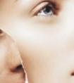 龙8国际网址龙8国际娱乐游戏的激光去鼻唇沟有效果吗