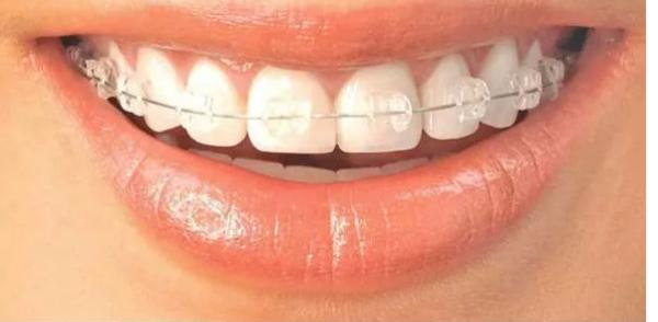 的牙齿矫正效果会不会反弹