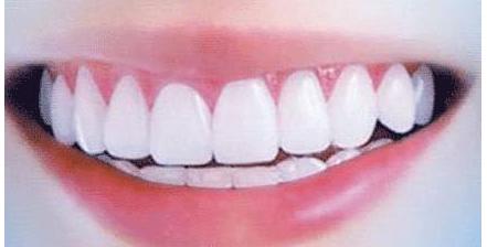 无痛种植牙