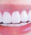 佛山做无痛种植牙安全吗