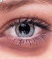 龙8国际网址去黑眼圈手术有什么危害吗