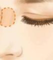 龙8国际真人做隆鼻手术是选择全麻好还是局麻