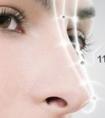 龙8国际网址如何避免出现自体软骨隆鼻后遗症
