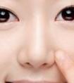 龙8国际真人医院做假体隆鼻手术会留下疤痕吗