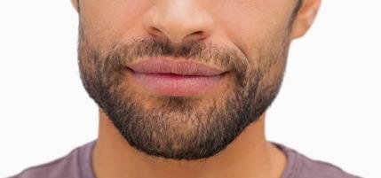 男人胡子怎么才能去掉不再长