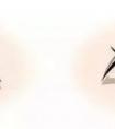 龙8国际网址医院做双眼皮手术为什么要开眼角