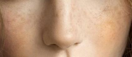 脸上有肝斑怎么办