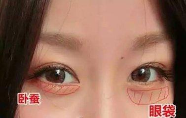 祛眼袋手术多少钱