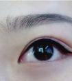 双眼皮失败修复哪里好