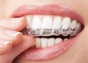牙套有哪几种