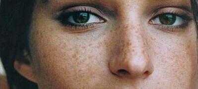 30岁女性祛黄褐斑什么方法比较有效?