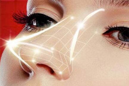注射隆鼻和假体隆鼻哪个效果更好