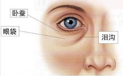 先天性眼袋怎么消除