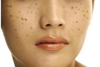 男人脸上长斑的原因是什么