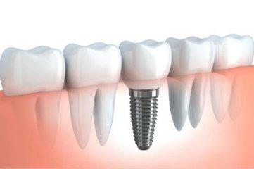 种植牙的寿命有多长?