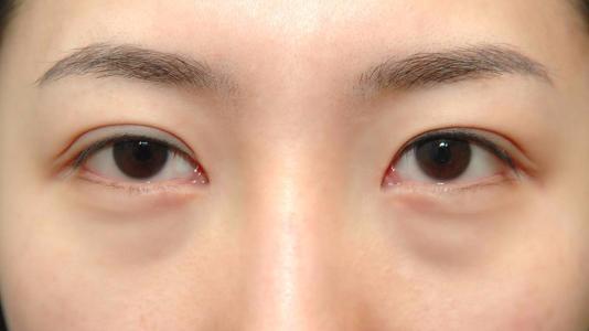 中医祛黑眼圈多少钱