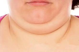 颈纹应该怎么消除