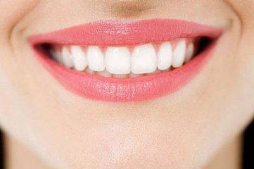 冷光美白牙齿一般多少钱