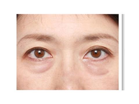 龙8国际网址祛眼袋手术哪家医院专业