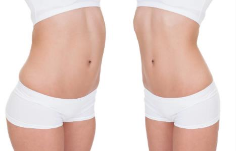 臀部吸脂减肥效果怎么样