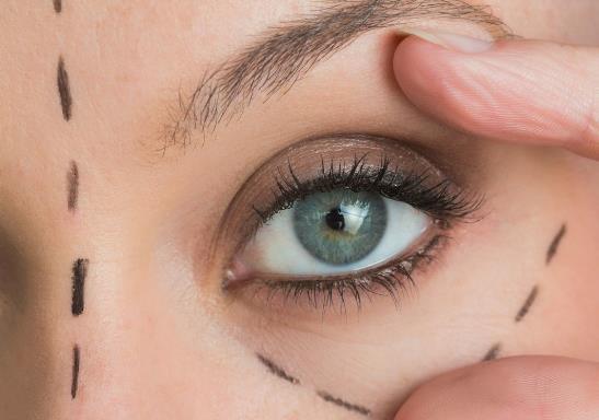 去除眼袋的有效方法有哪些