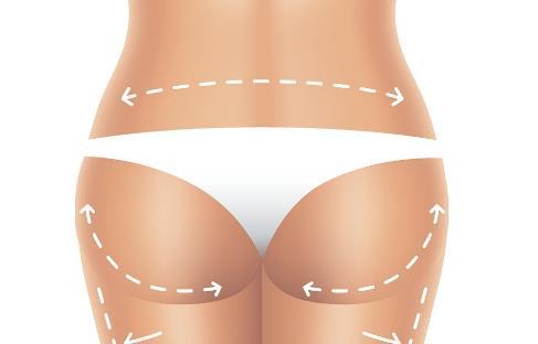 女生臀部怎么减肥才有效