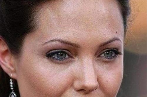 35岁女人皮肤暗沉怎么办