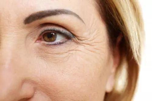 37岁眼部细纹可以改善吗