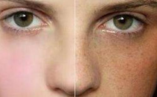 女性脸上的肝斑是怎形成的